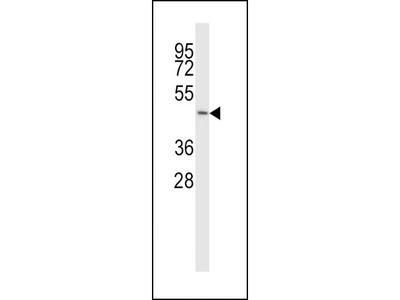 Rabbit Anti-SLC38A5, NT Antibody