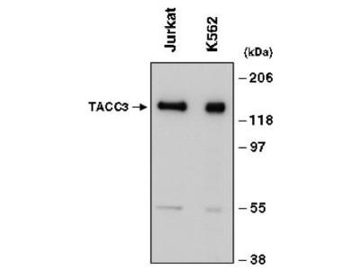 Goat Anti-TACC3 Antibody