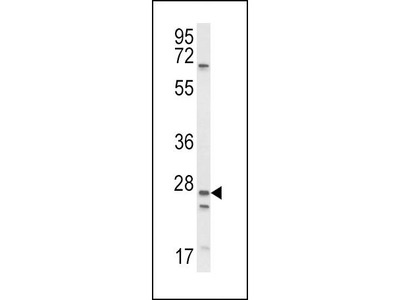 Rabbit Anti-SCNN1A, ID Antibody