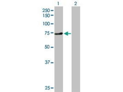 Rabbit Anti-ZNF394 Antibody