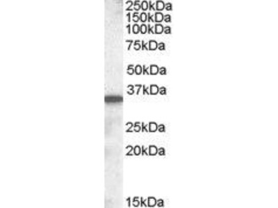 Goat Anti-Solute Carrier Family 10 Antibody
