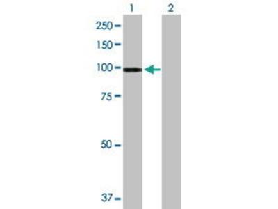 Mouse Anti-ATP2C1 Antibody