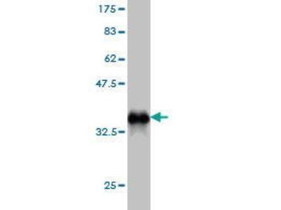 Mouse Anti-NOTCH3 Antibody