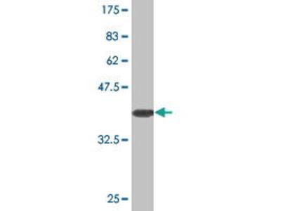 Mouse Anti-SLC25A18 Antibody