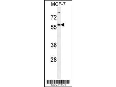 Rabbit Anti-ZNF165, ID Antibody
