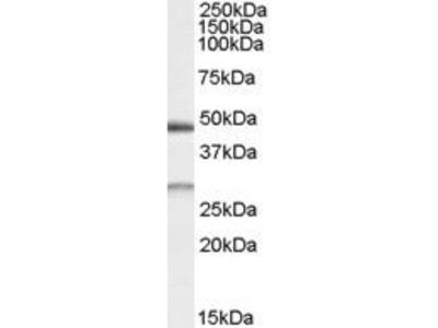 Goat Anti-BNIP1 Antibody
