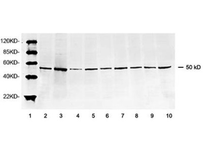 Rabbit Anti-Tubulin, beta 3 Antibody