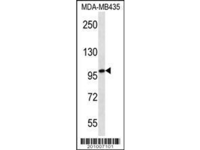 Mouse Anti-MYO1C Antibody