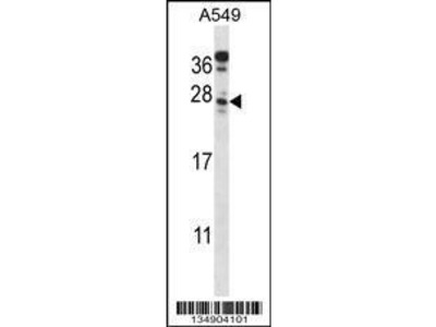 Rabbit Anti-C4orf49, CT Antibody
