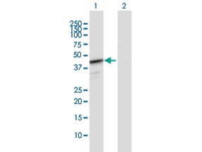 Rabbit Anti-HEMK1 Antibody