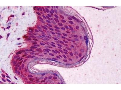 Mouse Anti-RAD51 Antibody