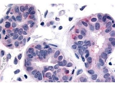 Rabbit Anti-HUNK Antibody