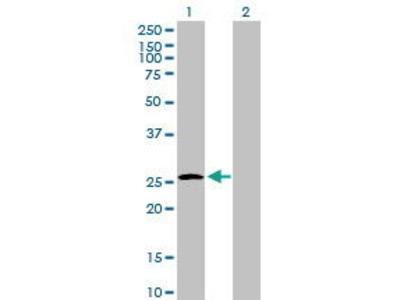 Mouse Anti-UROS Antibody