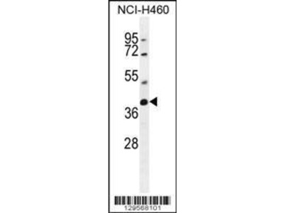 Rabbit Anti-SRD5A2L2, CT Antibody