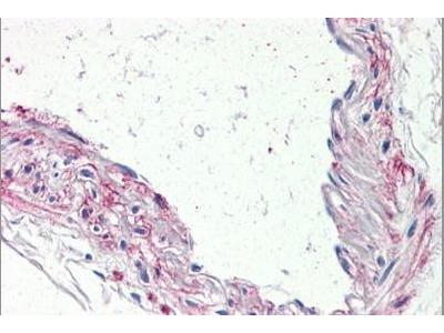 Rabbit Anti-5HT1B Receptor Antibody
