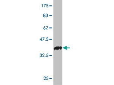 Mouse Anti-POMT2 Antibody