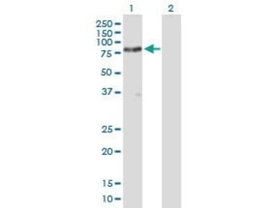 Mouse Anti-SH3BP2 Antibody