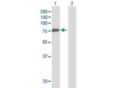 Mouse Anti-PADI4 Antibody