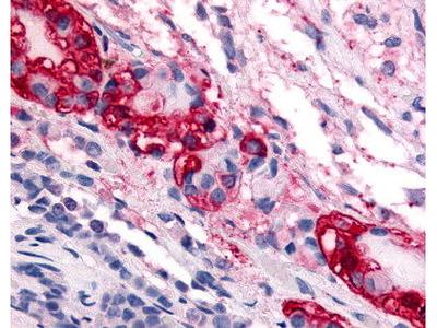 Rabbit Anti-CORTICOTROPIN RELEASING FACTOR RECEPTOR 1 Antibody