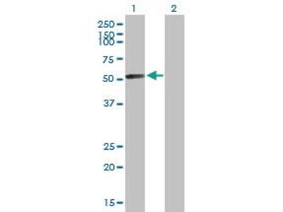 Mouse Anti-GALNS Antibody