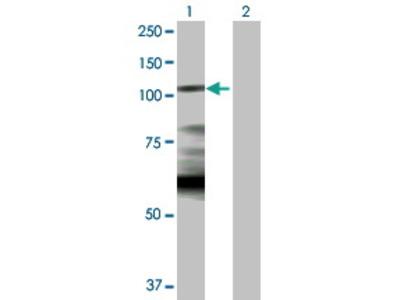 Rabbit Anti-Hexokinase 1 Antibody