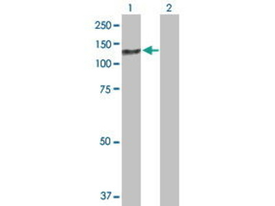 Mouse Anti-ZCCHC8 Antibody