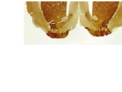 Mouse Anti-Muscarinic Receptor M4 Antibody