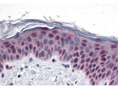 Rabbit Anti-CCDC47, CT Antibody