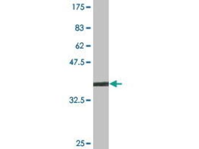 Mouse Anti-CTDP1 Antibody