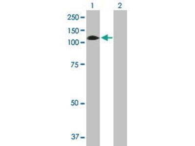 Mouse Anti-GBA2 Antibody