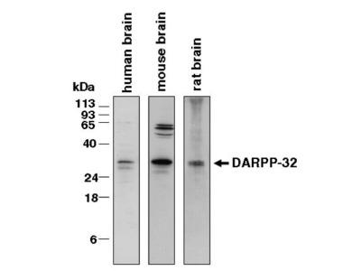 Goat Anti-DARPP32 Antibody
