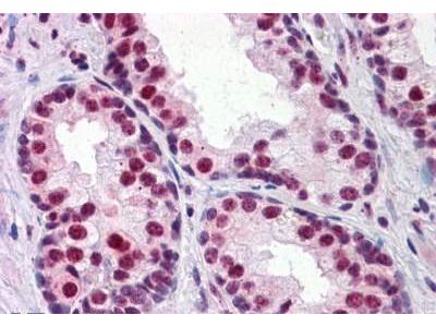 Mouse Anti-RUNX2 Antibody