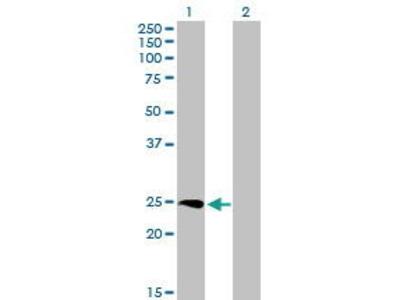 Mouse Anti-SSX3 Antibody