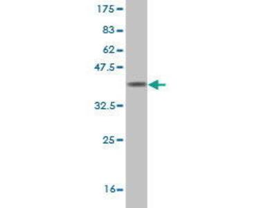 Mouse Anti-INPP5A Antibody
