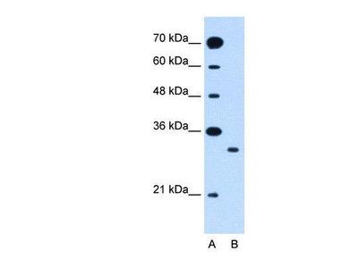 Rabbit Anti-SLC25A22 Antibody