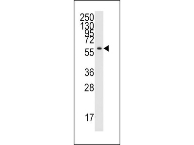Rabbit Anti-Tyrosyl tRNA synthetase, CT Antibody