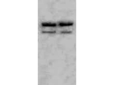 Rabbit Anti-ASAH2 Antibody