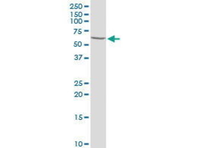 Rabbit Anti-Prolactin Receptor Antibody