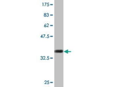 Mouse Anti-SREK1 Antibody