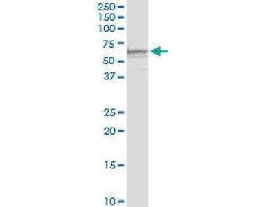 Rabbit Anti-SLC40A1 Antibody
