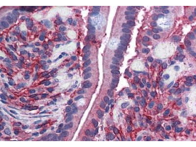 Goat Anti-CYBRD1, CT Antibody