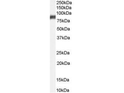 Goat Anti-ALOX5 Antibody