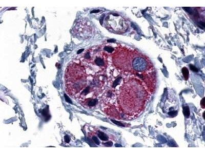 Rabbit Anti-PTGER4 Antibody