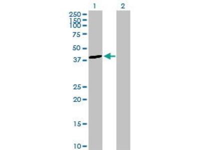 Rabbit Anti-ALDOB Antibody