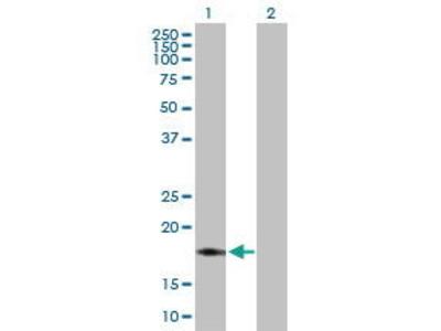 Rabbit Anti-NDUFB7 Antibody