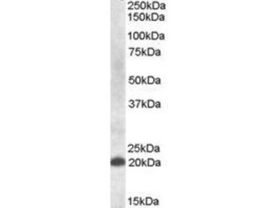 Goat Anti-CLEC4C Antibody