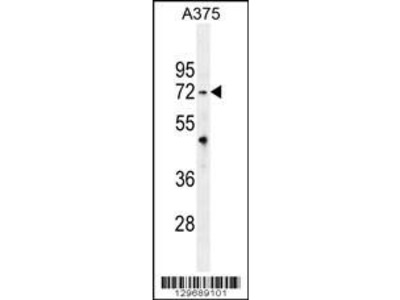 Rabbit Anti-TRIM56, CT Antibody