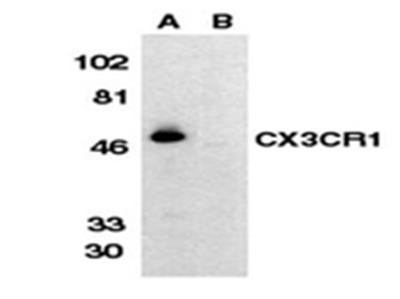 Anti-C-X-X-X-C Chemokine Receptor 1, extracellular loop