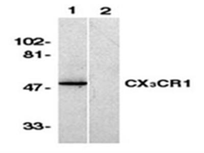 Anti-C-X-X-X-C Chemokine Receptor 1, N-terminus