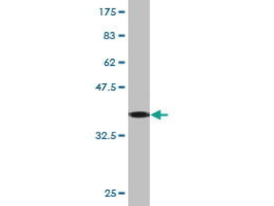 Mouse Anti-KRT8 Antibody